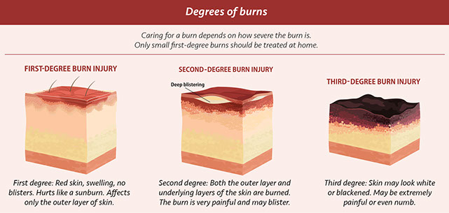 Chart Of Degree Burns
